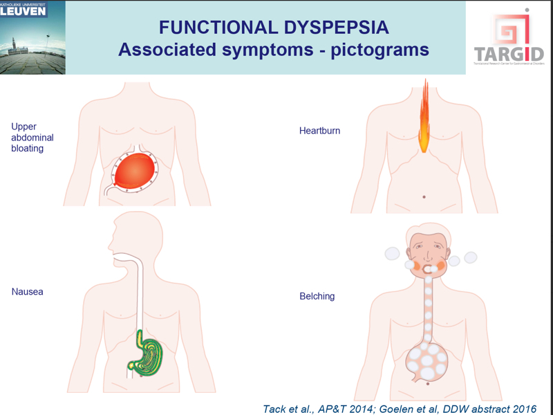 Functional Dyspepsia: What You Need to Know